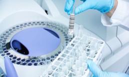 «Жидкая биопсия»: анализ крови распознает рак!