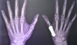 Пересадка имплантата пальца в Тайланде