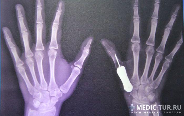 Имплантация пальца